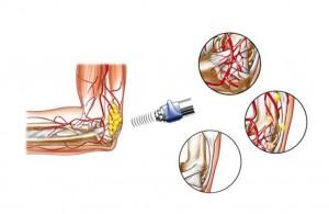 reversion-de-la-inflamacion-cronica